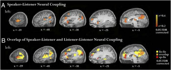 brain mri scans showing effects of storytelling